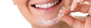 Usynlig tandretning